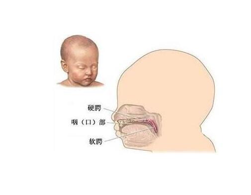 8岁小孩吐字不清的原因是什么也许是腭裂语音障碍