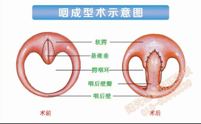 咽成型术示意图